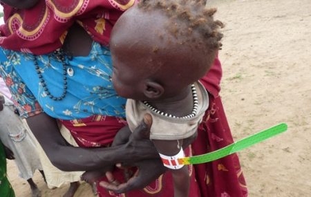 A red mid upper arm circumference measurement indicates that a child is severely malnourished