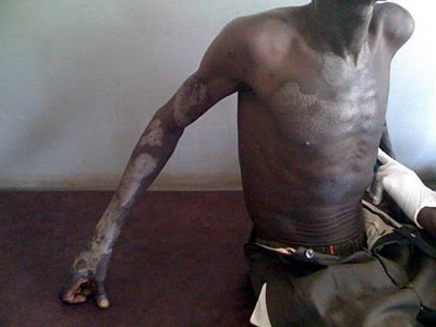 Photo: Eamonn Vitt | HIV/AIDS patient with severe skin disease.