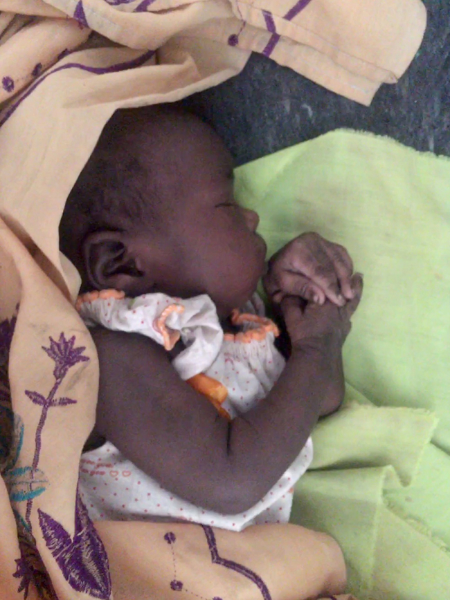 Image shows the baby sleeping peacefully after his check-up at the MSF / Doctors Without Borders hospital in Lankien
