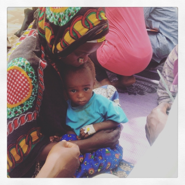Malnourished child at the MSF feeding clinic