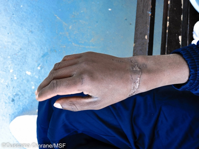 Jonathan's hand rests on his knee. His wrist is ringed with deep scars.