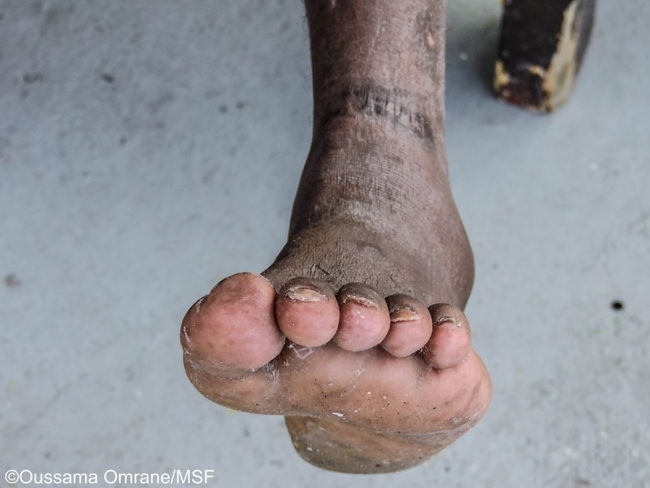 Jonathan's foot and ankle are badly scarred
