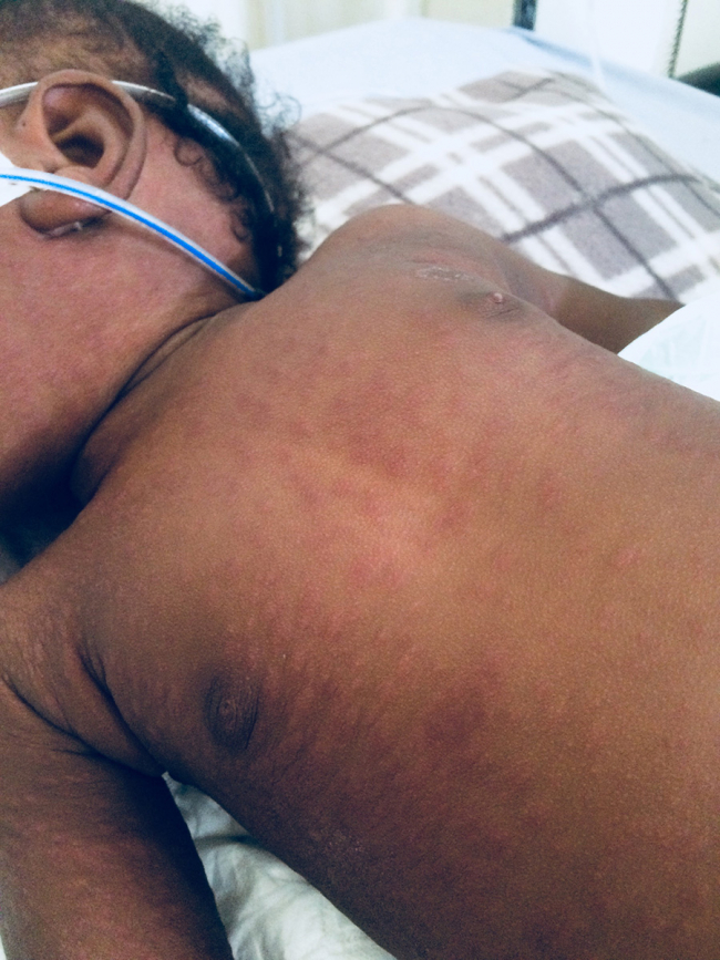Image shows a young patient with a measles rash across the belly