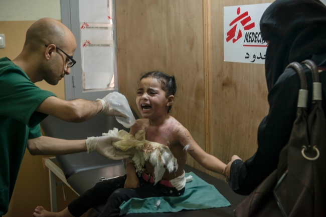Burns unit, al-Shifa hospital, Gaza, Occupied Palestinian Territories, 31 August 2014.