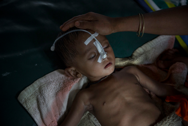 Image shows a child with a nasal tube