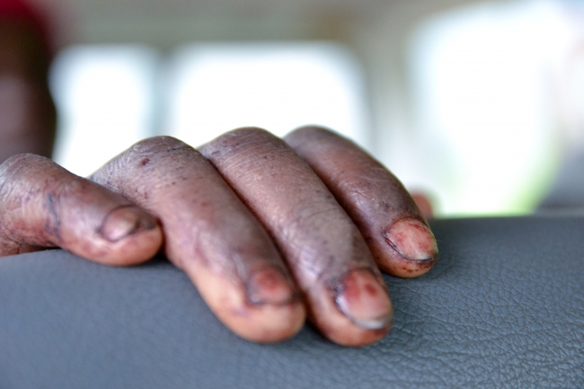 Simweray's bloodstained hands grip the back of a seat in the MSF ambulance.