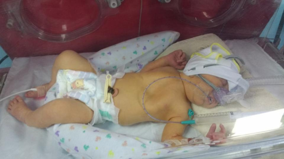 A baby with pneumonia lies in an incubator