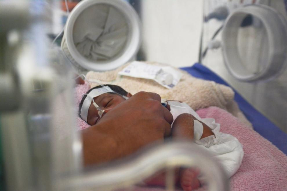 A premature baby receiving specialist neonatal care at a different MSF hospital in Yemen