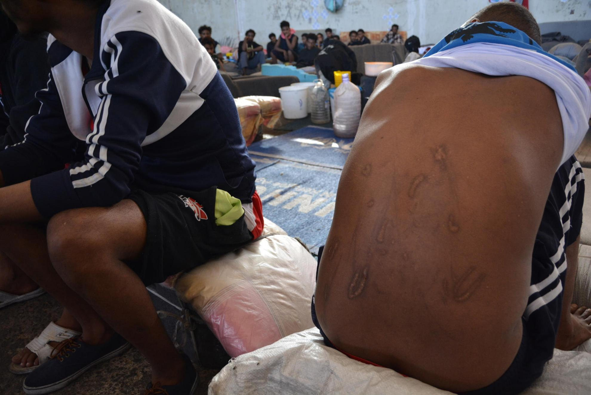 A man held in a Libyan detention centre shows scars from wounds inflicted by traffickers