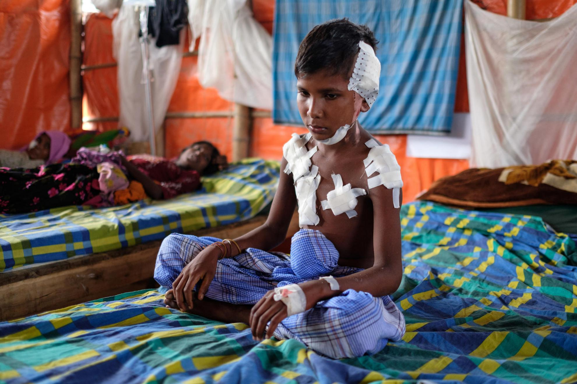 September 2017: A young boy, injured in the violence, sits on a bed in MSF's Kutupalong medical centre