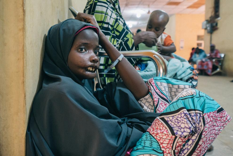 Amina, an 18-year-old noma patient from Yobe state