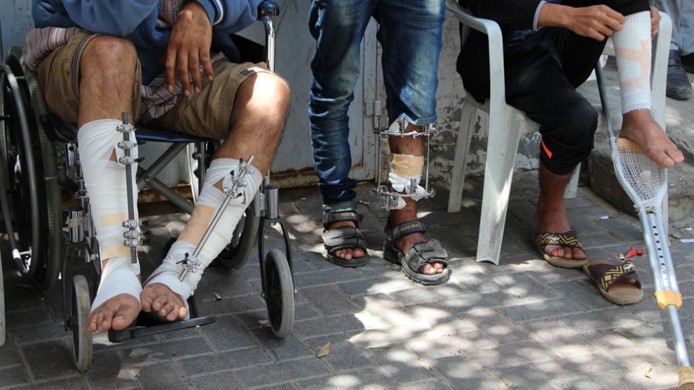 Patients recovering from gunshot wounds, waiting at an MSF clinic in Gaza