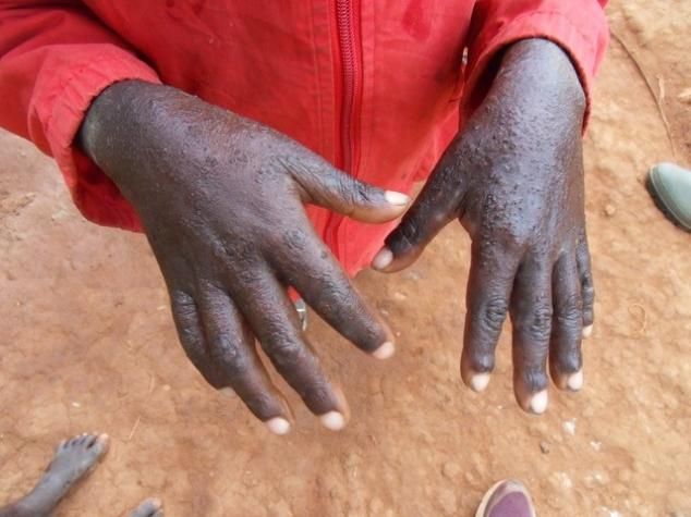 A young boy's hands covered with a scabies rash