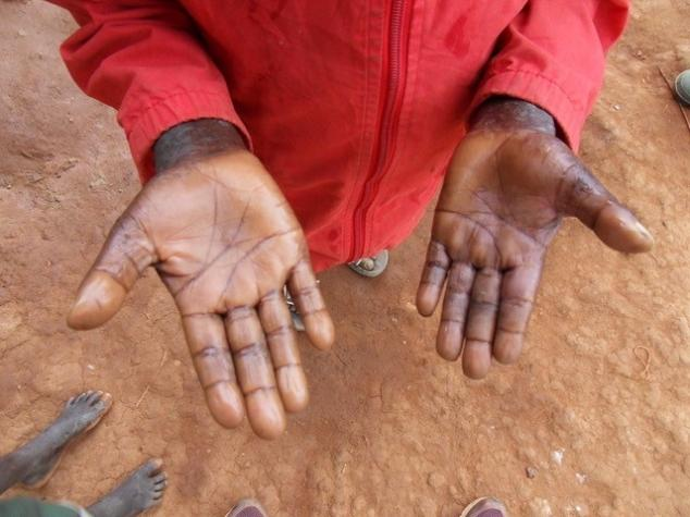 The healed wounds on the palms of Mandro's hands