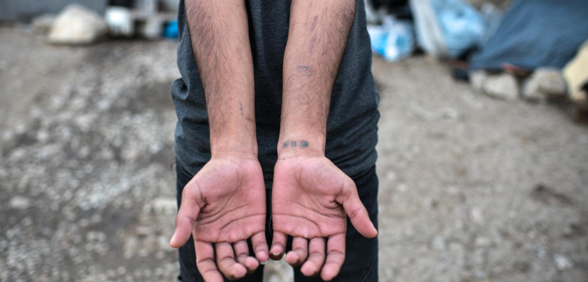 A Kurdish man shows his injuries. His family of seven fled Syria after the bombing of their city.