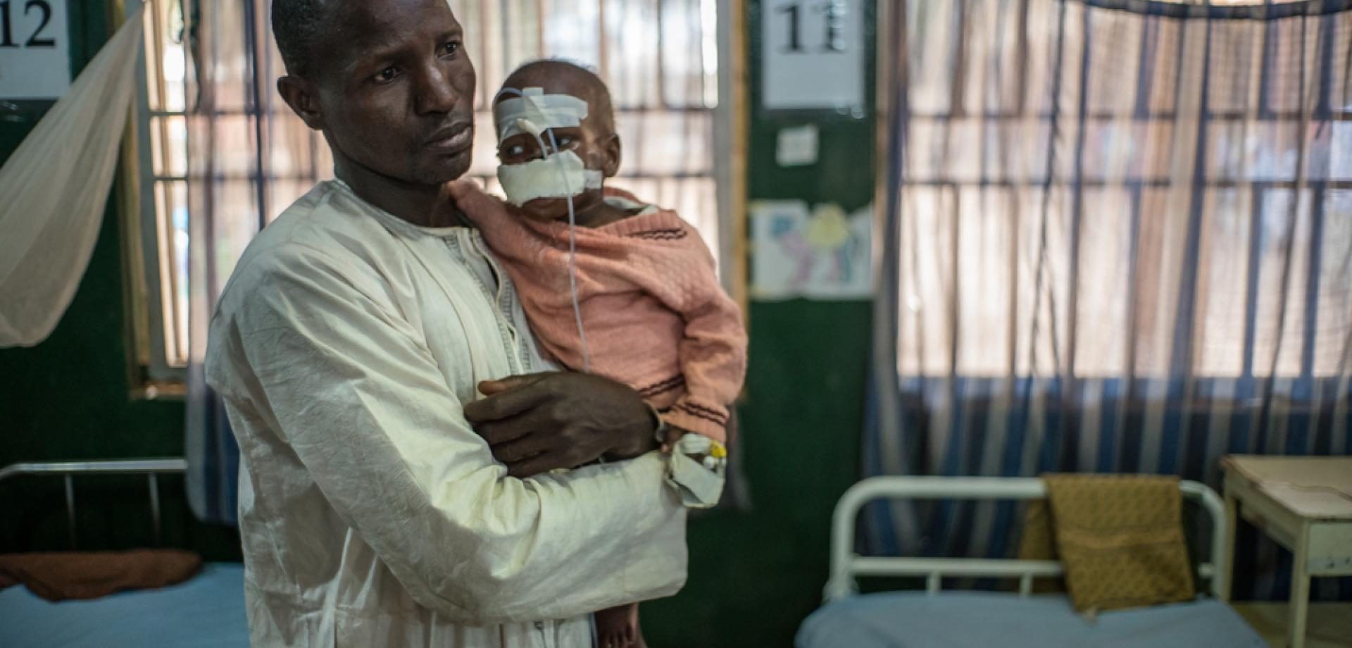 Two-year-old Mohammed was brought to Sokoto hospital after wounds caused by noma made it too difficult for him to eat